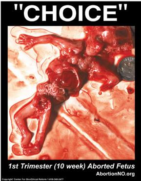 abortion themurder of an innocent life 2015-7-22  if someone has worked all their life suddenly becomes bedridden /or unable to look after themselves - their assets [url= ].